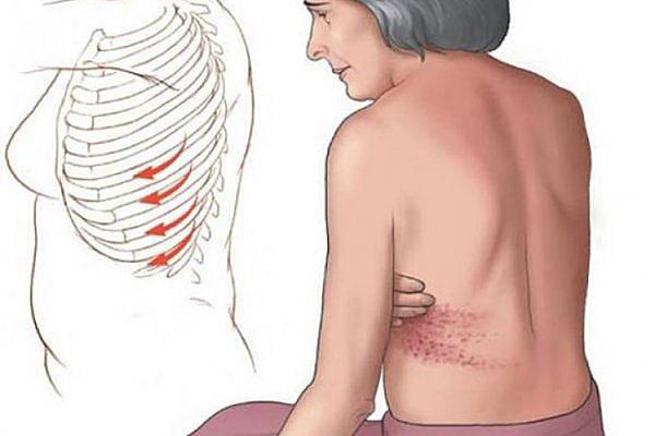 симптомы перелома ребер
