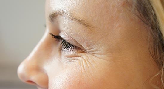 Почему появляются морщины в области глаз