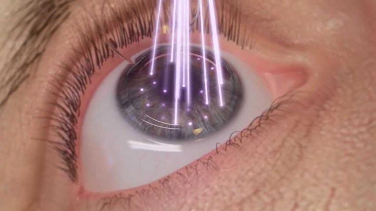 лазерное лечение близорукости