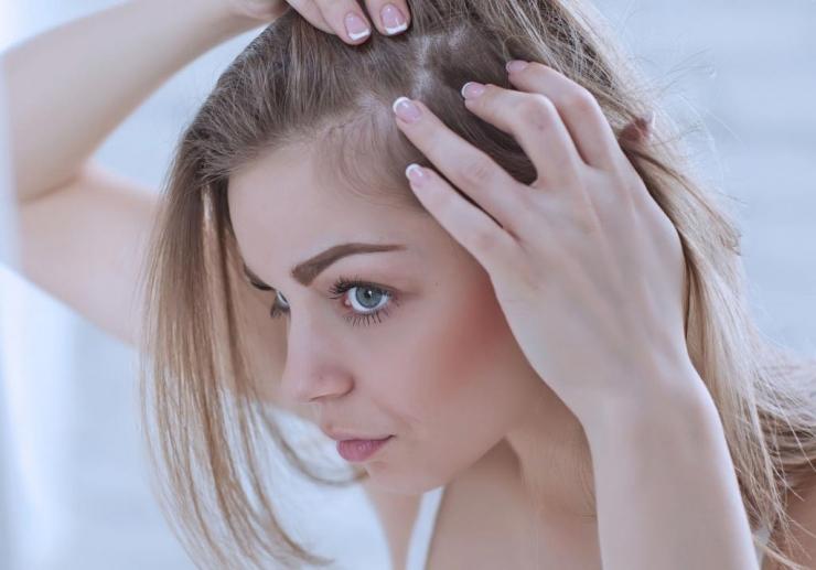 Залысины у женщин - причины появления и как их лечить