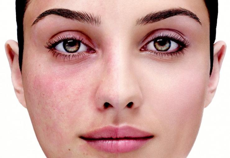 Проблема на лицо: купероз кожи