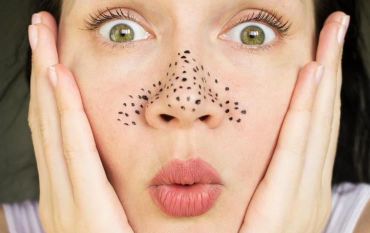Правила избавления от черных точек на лице